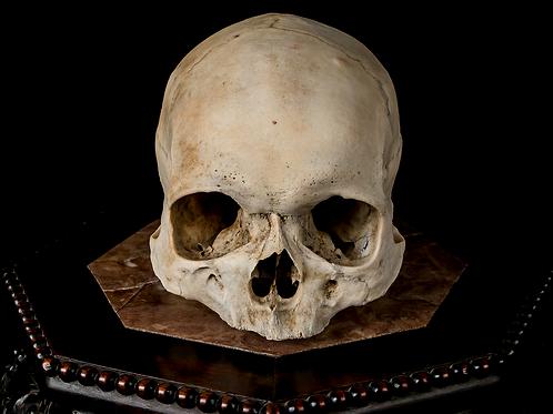Human Skull #8432