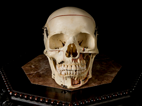 Dissected Human Skull #9104