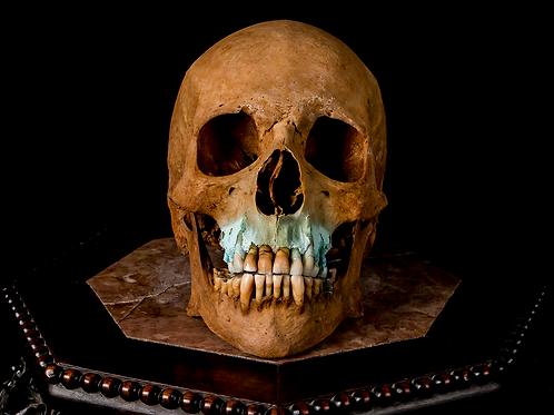 Human Skull #8493