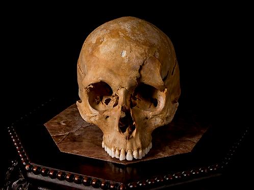 Human Skull #8319, Perimortem Damage