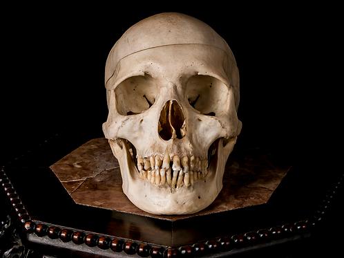 Human Skull #9342