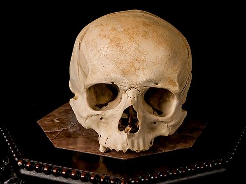 Human Skull #8460