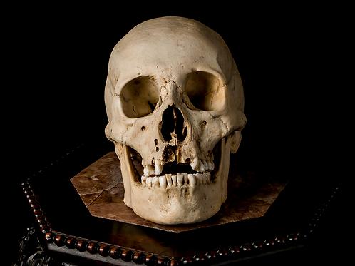 Human Skull #9396, Wormian Bones
