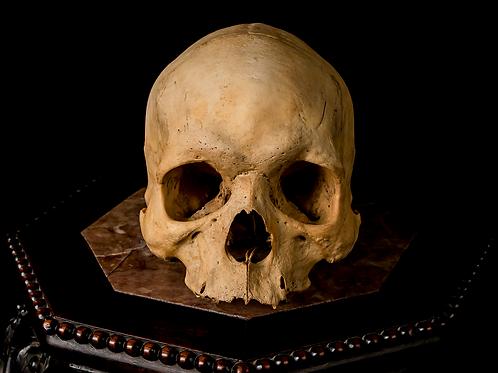 Human Skull #T409 - Enlarged Parietal Foramina