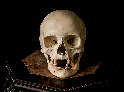 Human Skull #8370