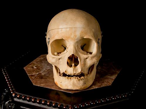 Human Skull #8424, Wormian Bones