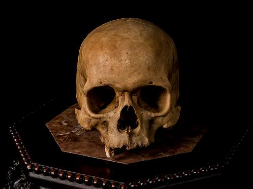 Human Skull #8386, Wormian Bones