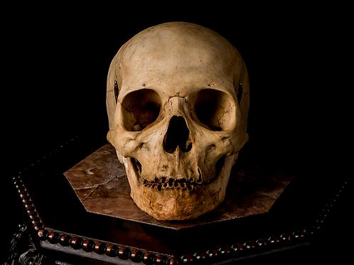 Human Skull #8378
