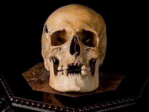 Human Skull #7373