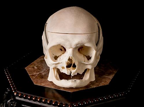 Human Skull #9420