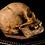 Thumbnail: Human Skull #8481