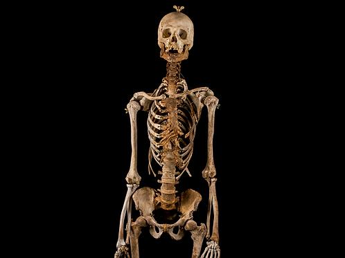 Human Skeleton #822, 19th-Century