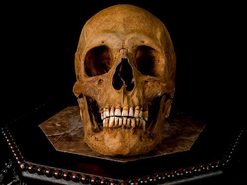 Human Skull #8492