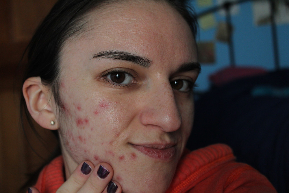 Carla posing to show acne covered skin