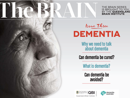 Why is Dementia such an important issue?
