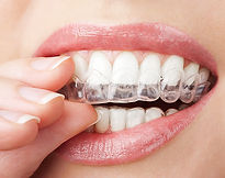 teethwithwhiteningtray.j_284278.jpg