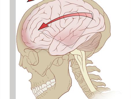 Concussion Baseline Testing