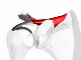 Physical Therapy as Effective as Surgery for Degenerative Rotator Cuff Shoulder Pain