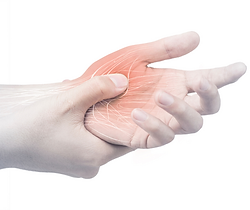 Hand Nerve Pain.png
