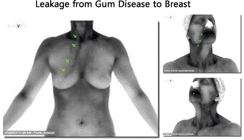 Leakage from Gum Disease to Breast Image
