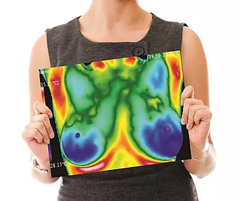 women holding thermography scan.png