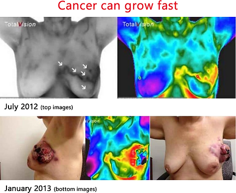 Cancer can grow fast Image.png