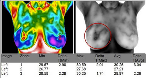 Breast Cancer found w Thermography Image
