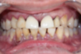 Dental Implant 3 by The Earth Dental