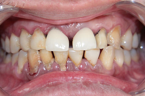 Dental Implant 3 by The Earth Dental