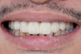 Dental Implant 4 by The Earth Dental