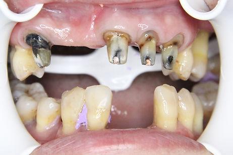 Dental Bridge 1 by The Earth Dental