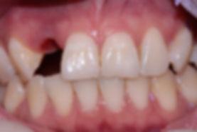 Dental Implant 5 by The Earth Dental