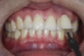Teeth Whitening 4 By The Earth Dental