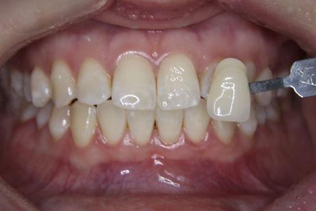 Teeth Whitening 2 By The Earth Dental