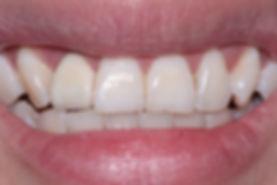 Dental Implant 6 by The Earth Dental