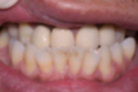 Dental Implant 2 by The Earth Dental