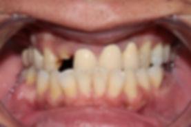 Dental Implant 1 by The Earth Dental
