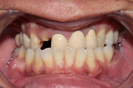Dental Implant 1 by The Earth Dental