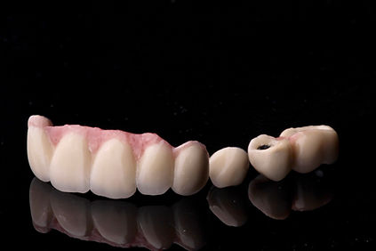 Denture Implant The Earth Dental