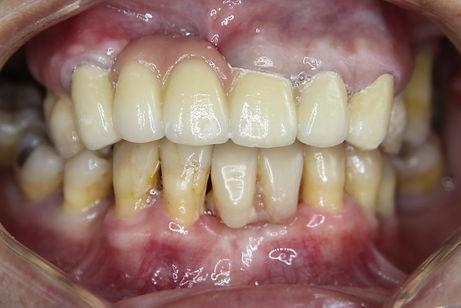 Dental Bridge 2 by The Earth Dental