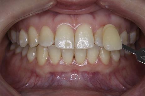 Teeth Whitening 1 By The Earth Dental