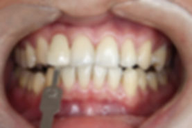 Teeth Whitening 3 By The Earth Dental