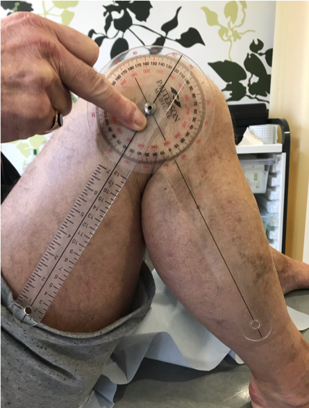 Manipulation Under Anaesthetic (MUA) after a Total Knee