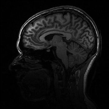 Image of my brain from an MRI scanner