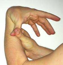 Treatment for Hypermobility