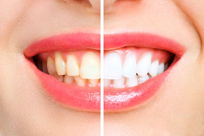 woman-teeth-before-after-whitening-image