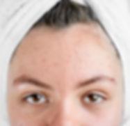chica-despues-spa-toalla-blanca-acne-pro