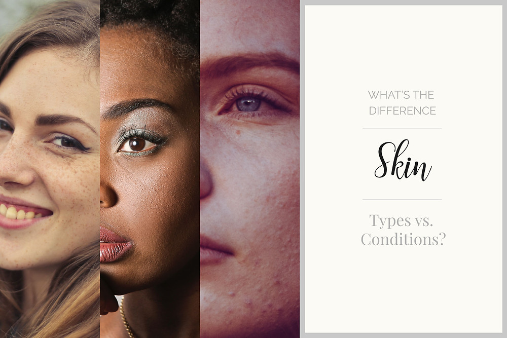 When you are looking into skincare treatments and products, your skin needs will be determined by which category your skin falls under, a combination of its natural type and any conditions you have. Once you know this you can really make sure you get the right treatments and products for your needs.