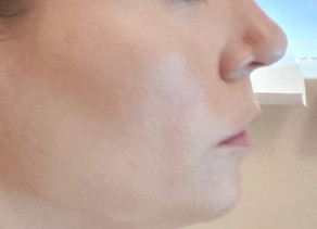 TBN: Double Chin Edition- Aqualyx Treatment Review