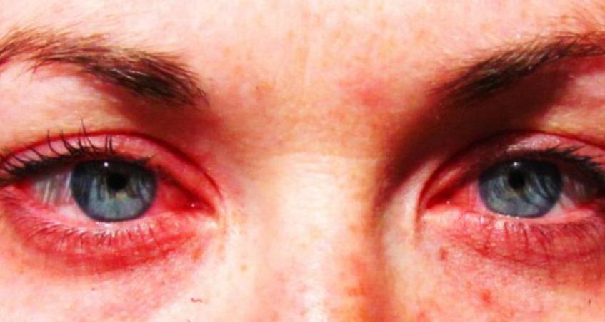 Acupuncture et Allergies 05